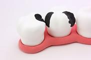どんぐり小児歯科はフッ素による歯質強化で虫歯予防