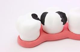 どんぐり小児歯科でフッ素による歯質強化で虫歯予防